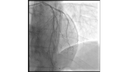 Positive result demonstrated without residual stenosis