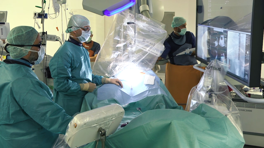 LAA Closure with Fusion of Live Angiography and TEE Imaging
