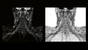 Brachial plexus 3D T2 SPACE