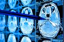AI within disease pathways