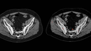 Molecular Imaging prostate