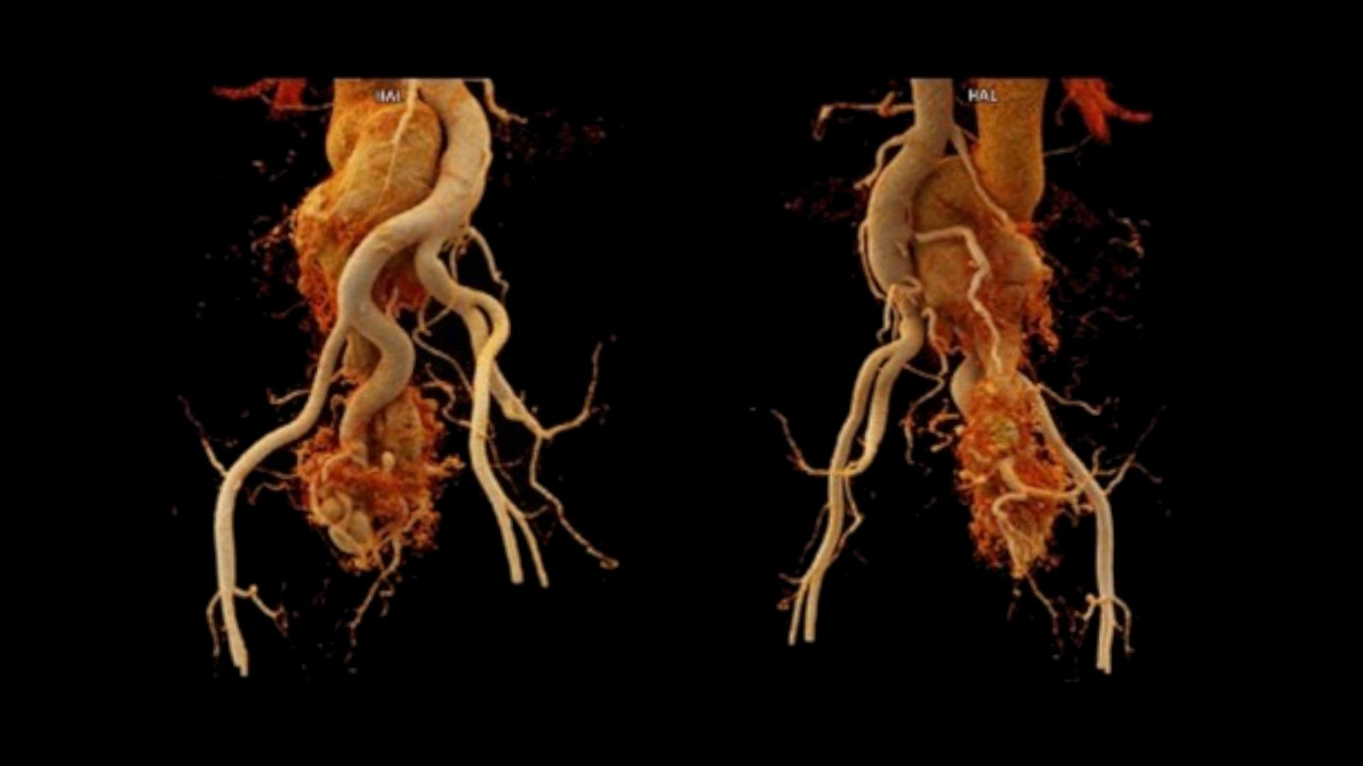 cVRT images show a dilated RIIA entangling distally with the RIIV. The IVC is opacified in the arterial phase, tortuous and dilated in the abdominal segment.