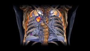 «Скрининг и лечение рака легкого»