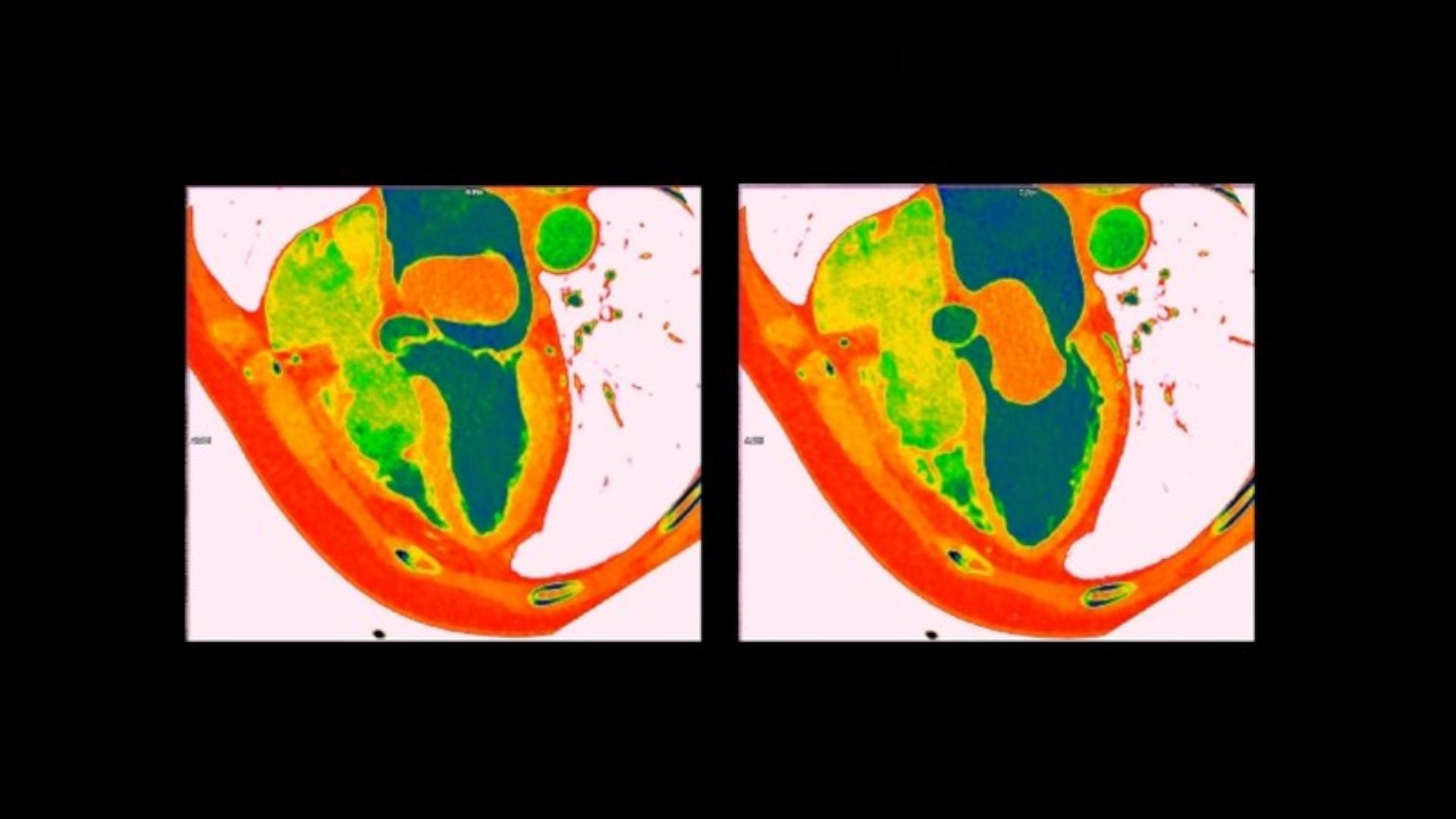 Two images captured in a movie, showing the dynamic movement of the mass and the heart, demonstrate that the mass partially prolapses into the left ventricle in diastole and returns into the left atrium completely in systole.