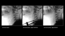 Clinical images taken with Cios Select with FD mobile C-arm machine