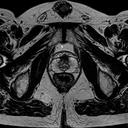 Prostate imaging