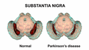 A normal human brain contrasted with a human brain with Parkinson's disease, which shows a smaller substantia nigra region.