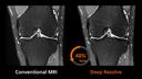 MRI Comparison