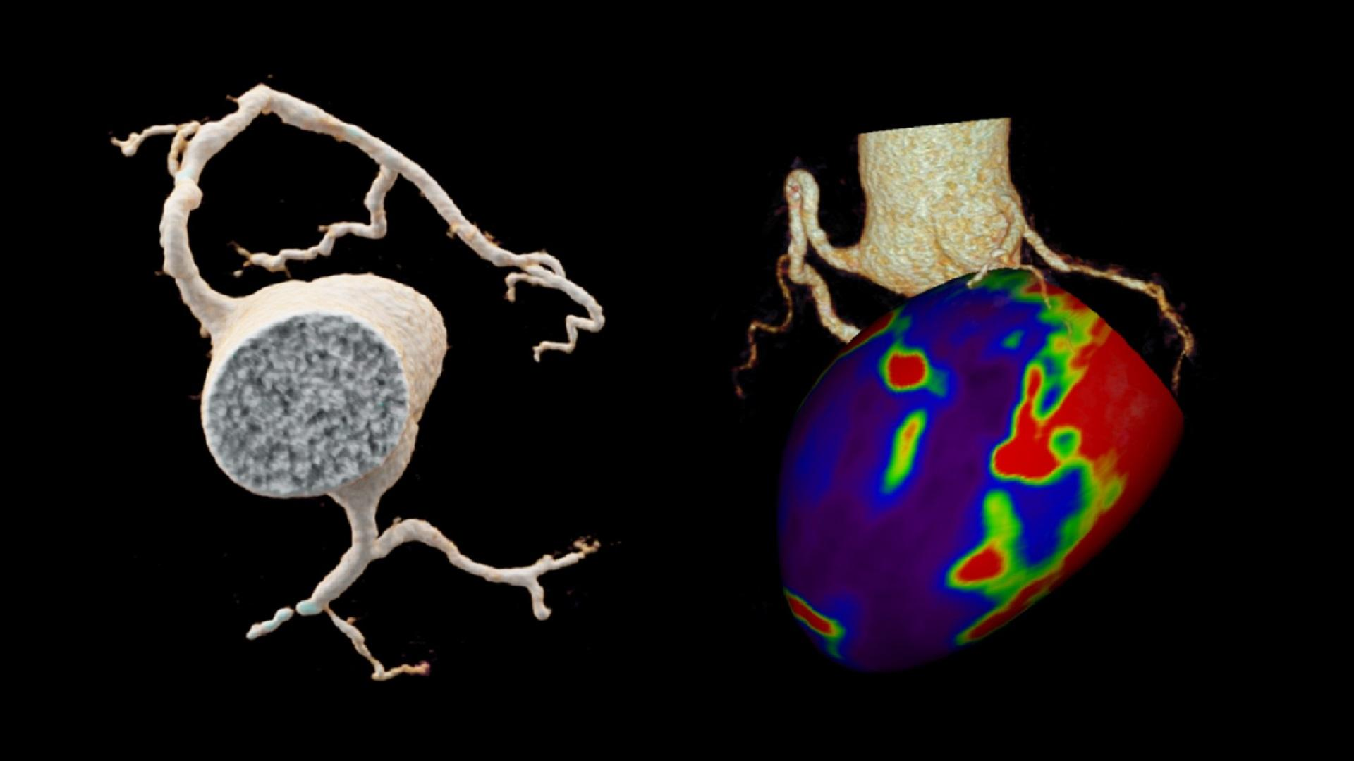 A VRT image shows a LAD occlusion.  A hybrid view, containing the coronary tree and myocardial enhancement, demonstrates contrast perfusion defects.