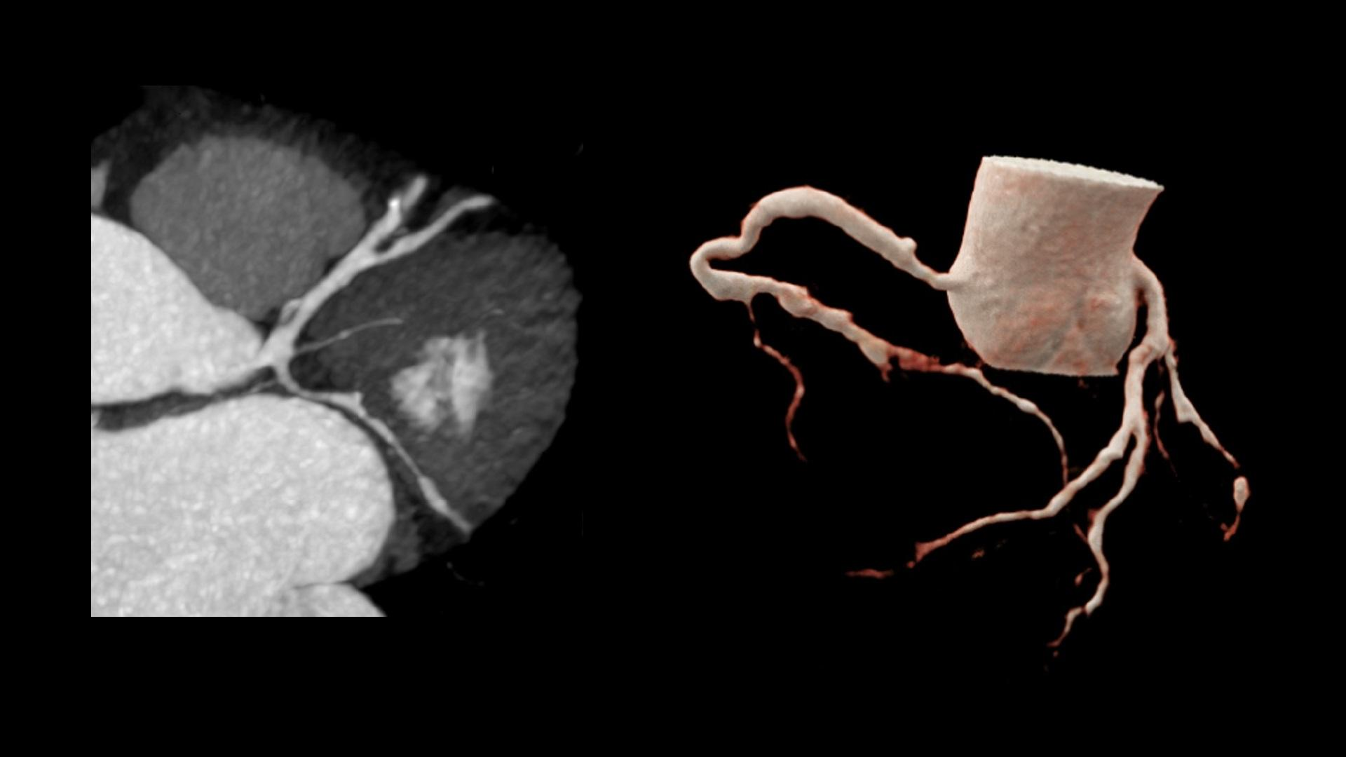 MIP and cVRT images show the coronary tree with multiple stenoses.
