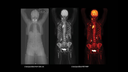 Whole-body molecular images (from top of head to middle of the thighs) acquired on Biograph Vision Quadra.