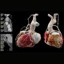 Patient mit koronarer Herzkrankheit nach mehrfachem Bypass