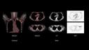 Biograph Vision Quadra Case image