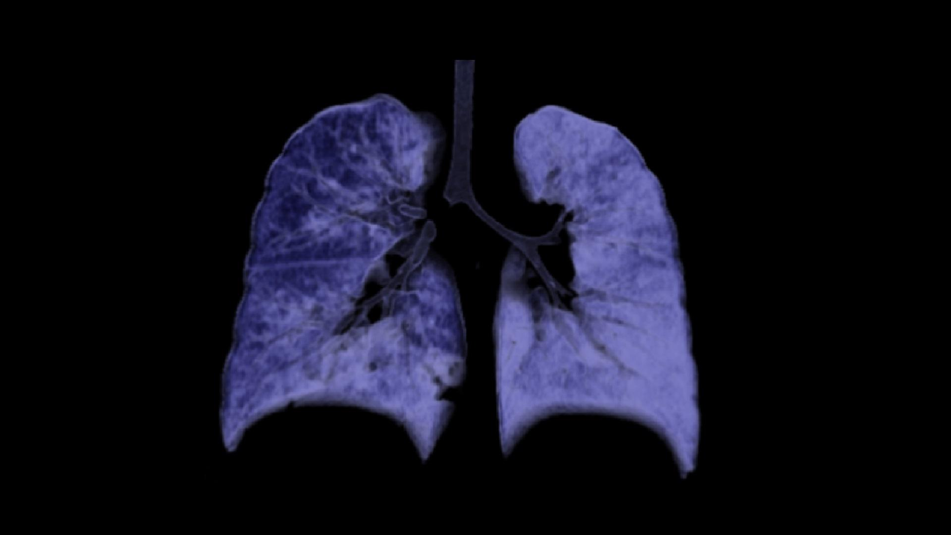 A VRT image shows a blocked right main bronchus. The right lung appears hyperlucent in comparison to the left one, suggesting hyperinflation due to the valve effect.