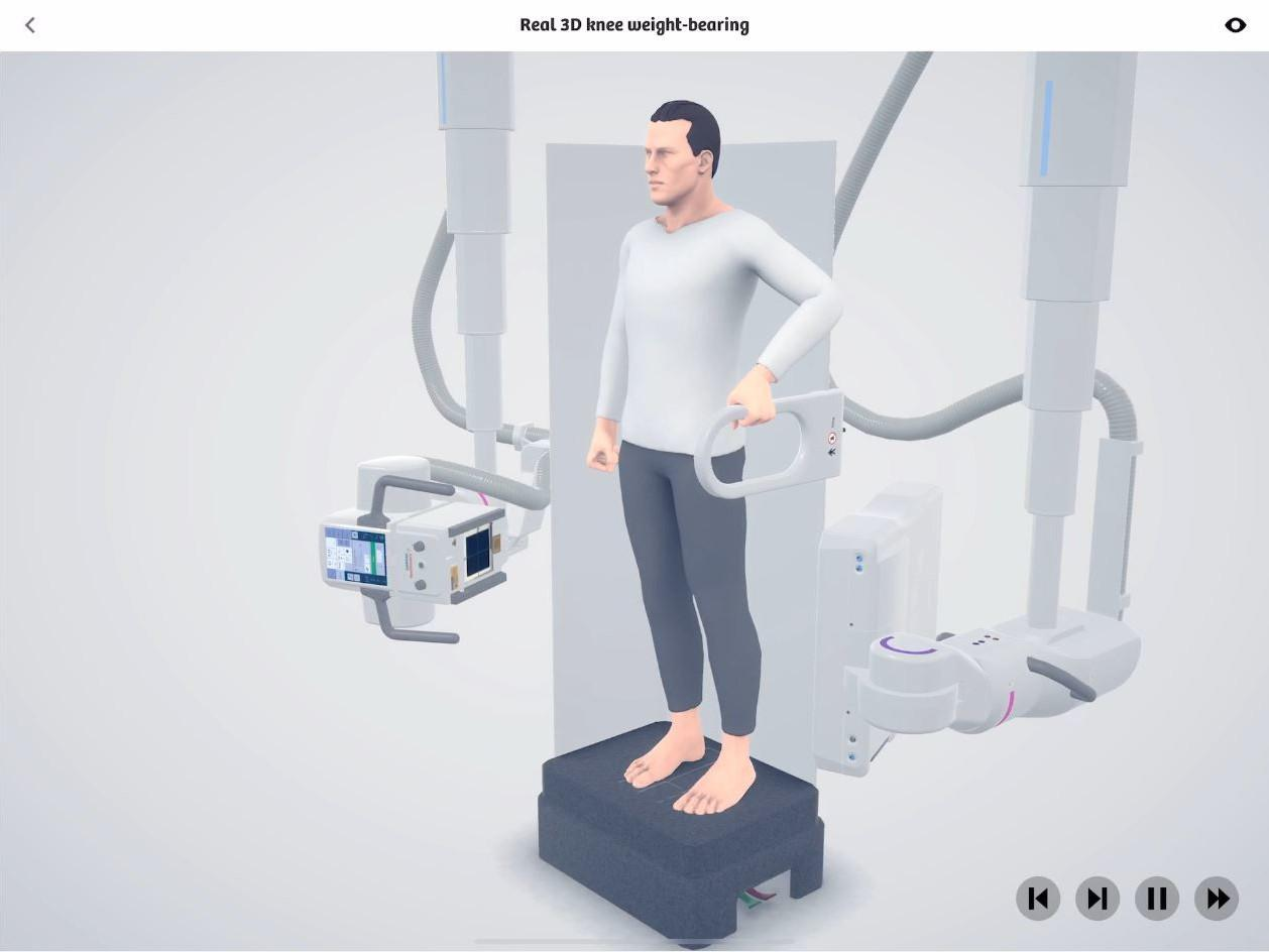 Real 3D knee weight-bearing