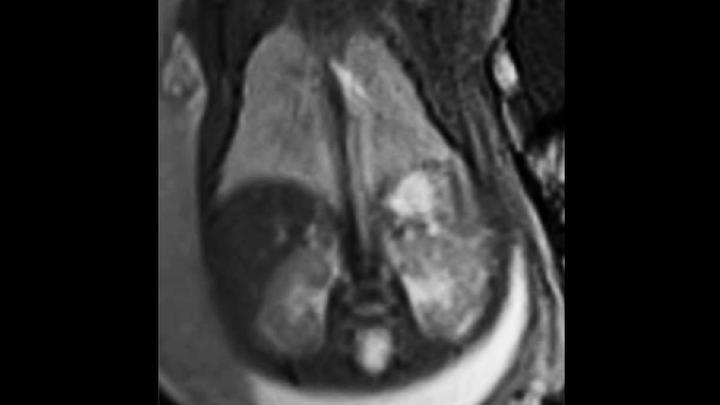 fetale Lunge und Leber