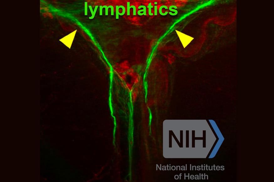 brain lymphatics