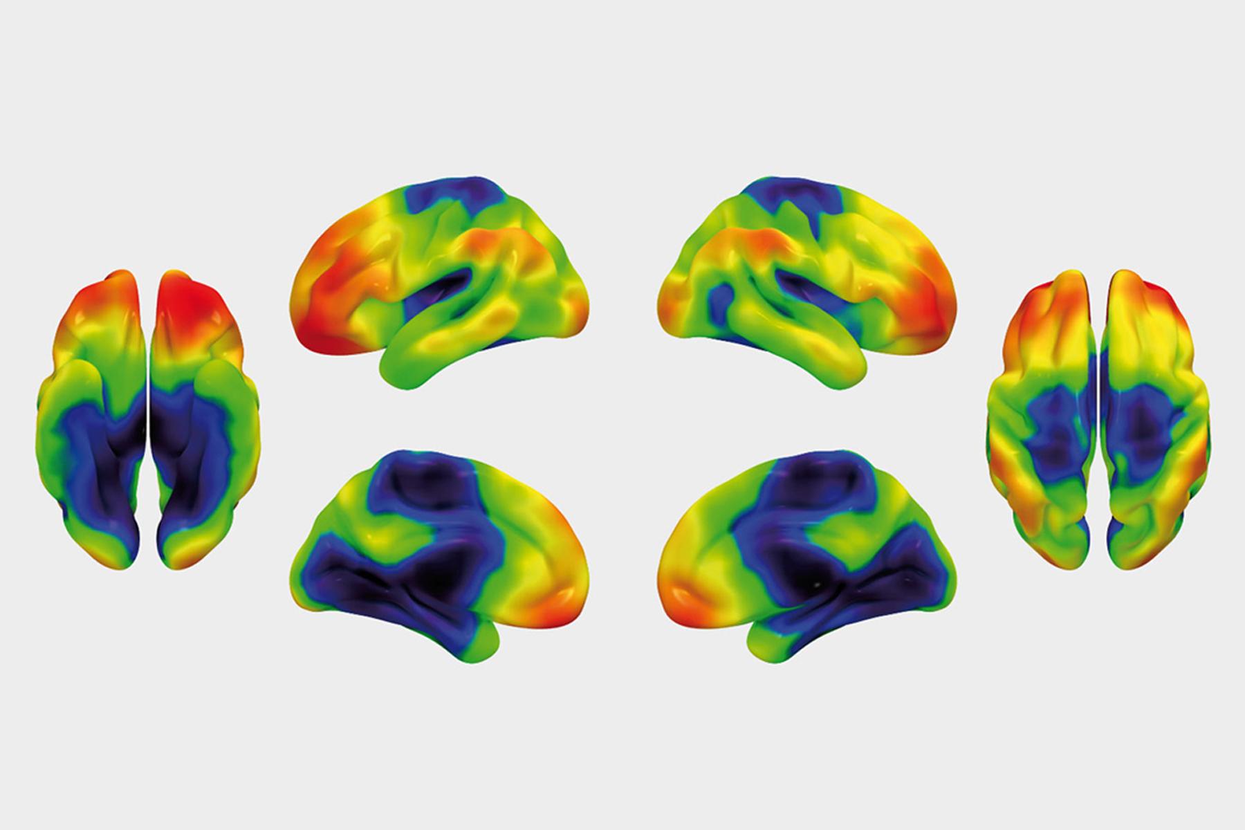 Brain Imaging ©Michael Ewers