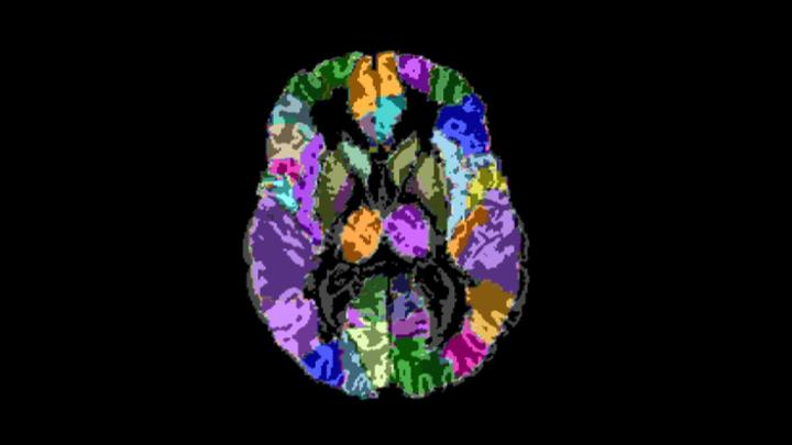 Morphologische Sequenzen erlauben u.a. die Segmentierung und Volumetrie von Gehirnstrukturen