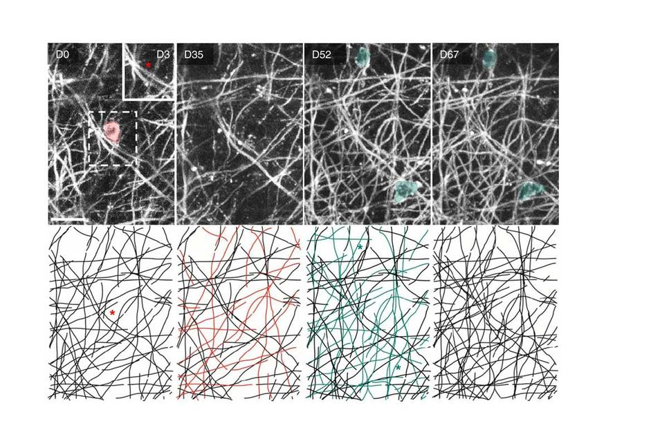 Single cell ablation reveals the rules of myelin replacement