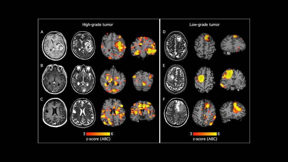 Veränderungen der funktionellen Konnektivität bei Patienten mit höhergradigen (A-C) und bei Patienten mit niedriggradigem (D-F) Hirntumor