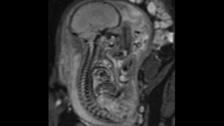 fetale Wirbelsäule