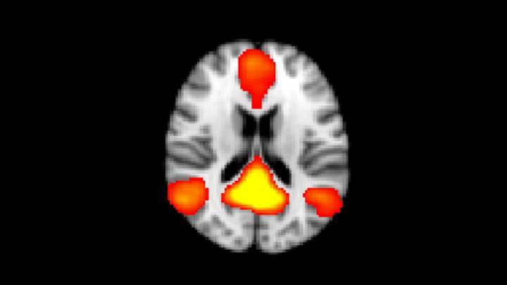 Die funktionelle MRT (fMRI) ermöglicht die Darstellung und Quantifizierung der Konnektivität von funktionellen Netzwerken im Gehirn