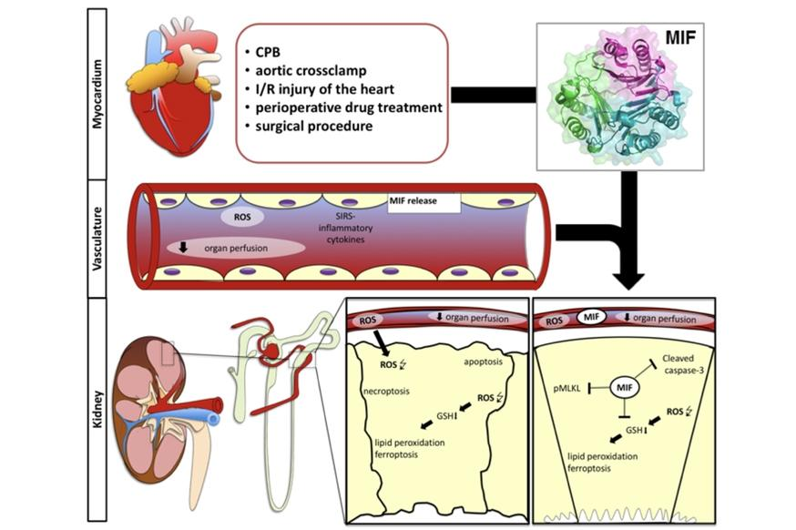 MIF protects from complications after cardiac surgery
