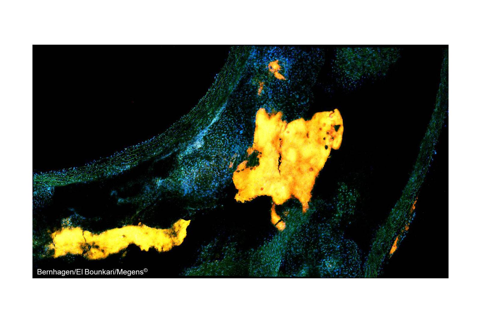 Multi Photon Microscopy
