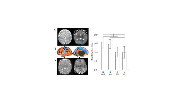 Zusammenhang der funktionellen Konnektivität (B) mit der Reifung des inferio-frontalen (A) und des motorischen Kortex