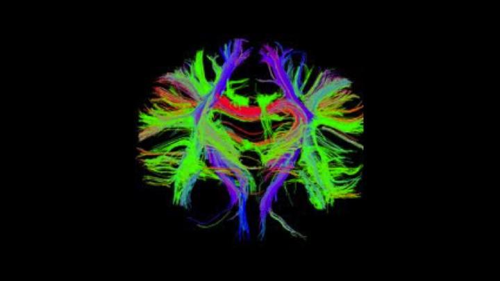 Das Diffusions tensor imaging (DTI) dient der Darstellung der Fasertrakte des Gehirns