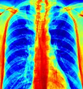 Eine Falschfarbendarstellung einer Lunge.