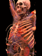The white cables on this Cinematic Rendering image from 2015 belong to an ECG unit that was connected to the patient during the CT scan.