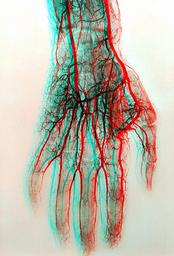 blood vessels in hand