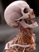The thyroid gland and bones of the head and neck region, visualized using Cinematic Rendering in 2015