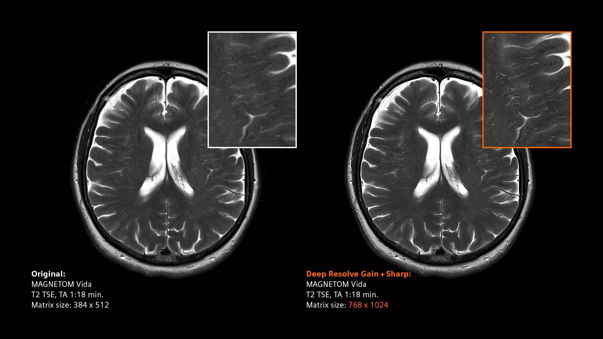 Deep Resolve - scan