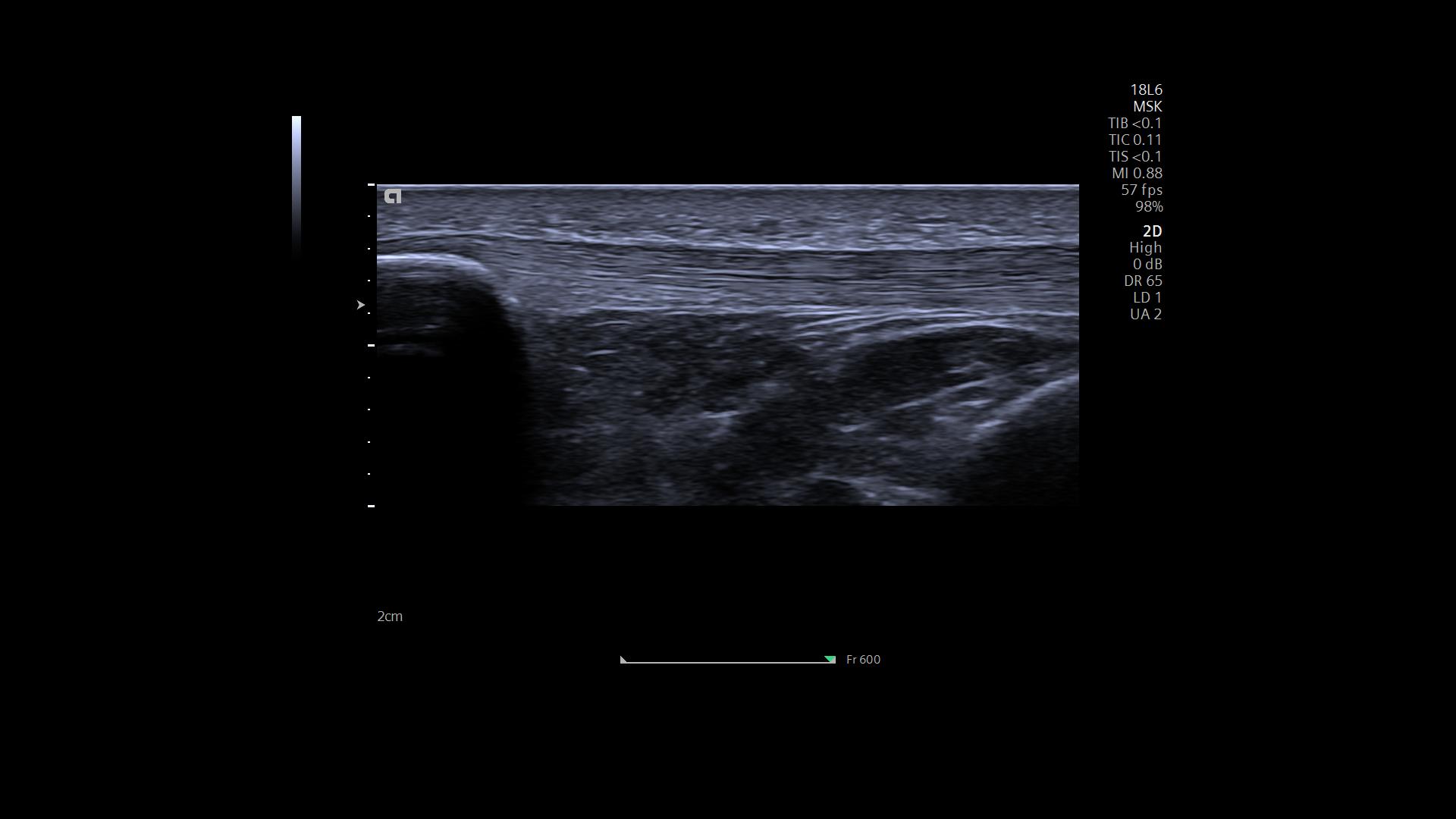 acuson redwood - clinical use - msk