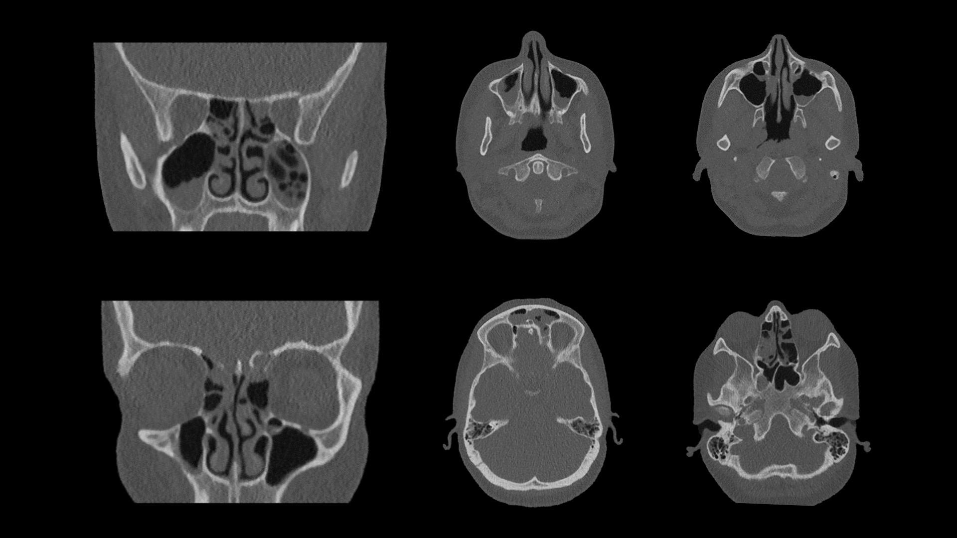 Ultra-low-dose sinus examination