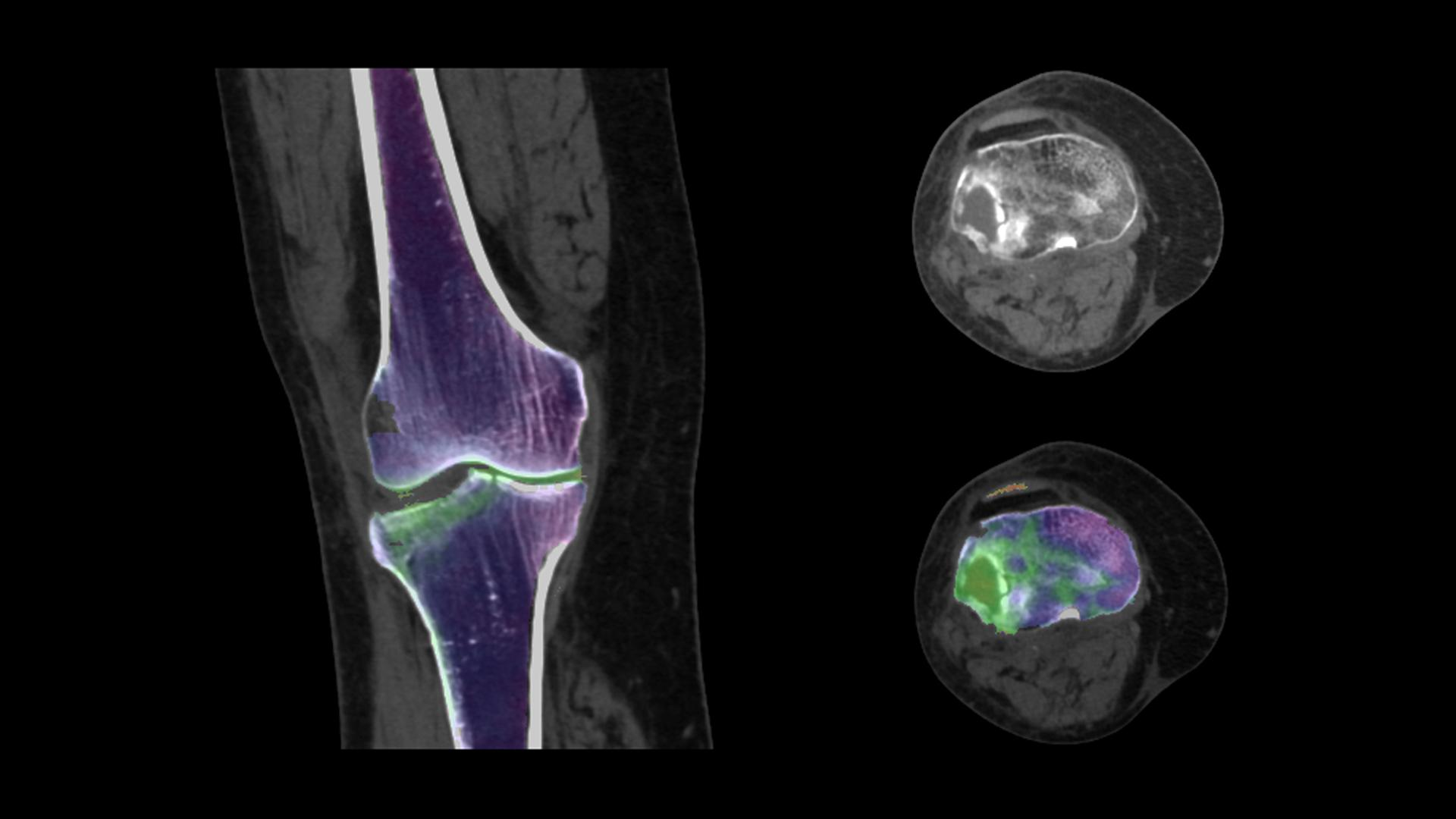 Spectral assessment of bone marrow