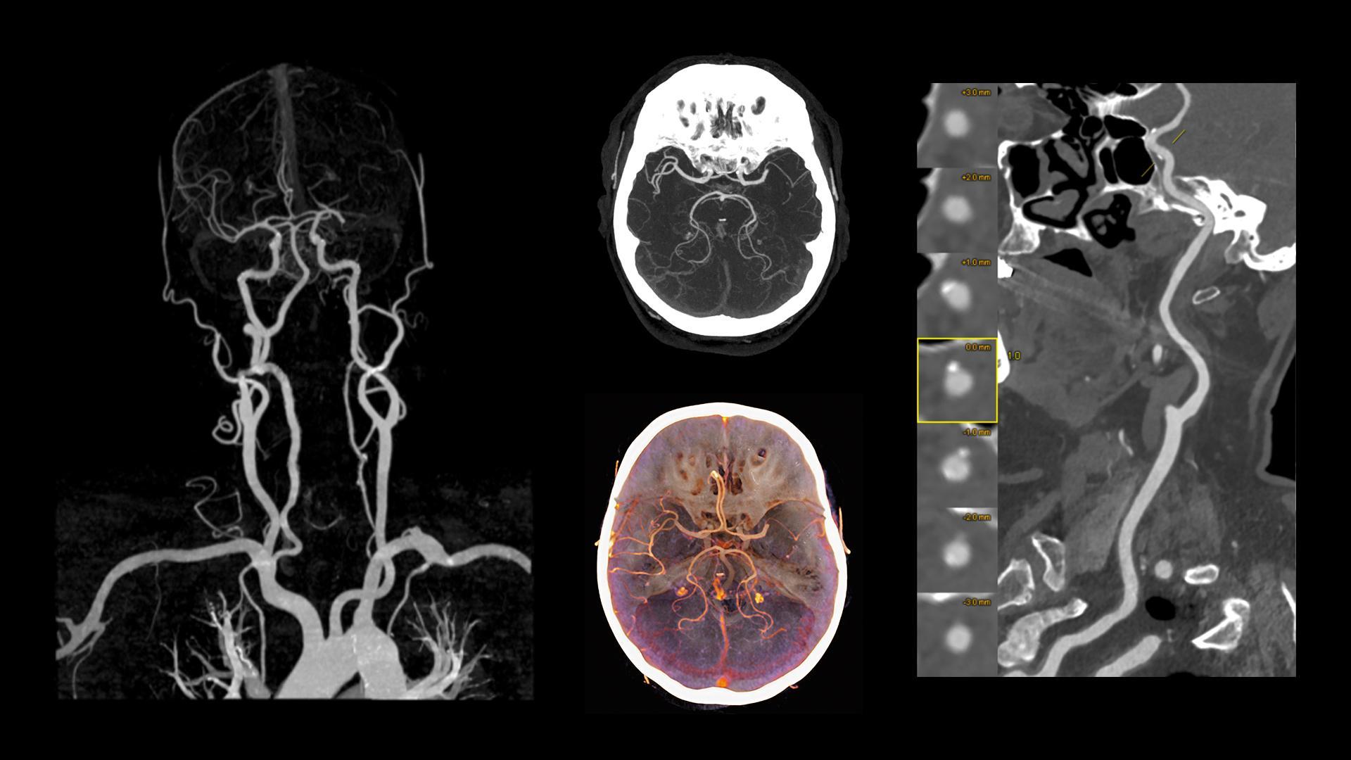 Supra-aortic CTA for clot assessment