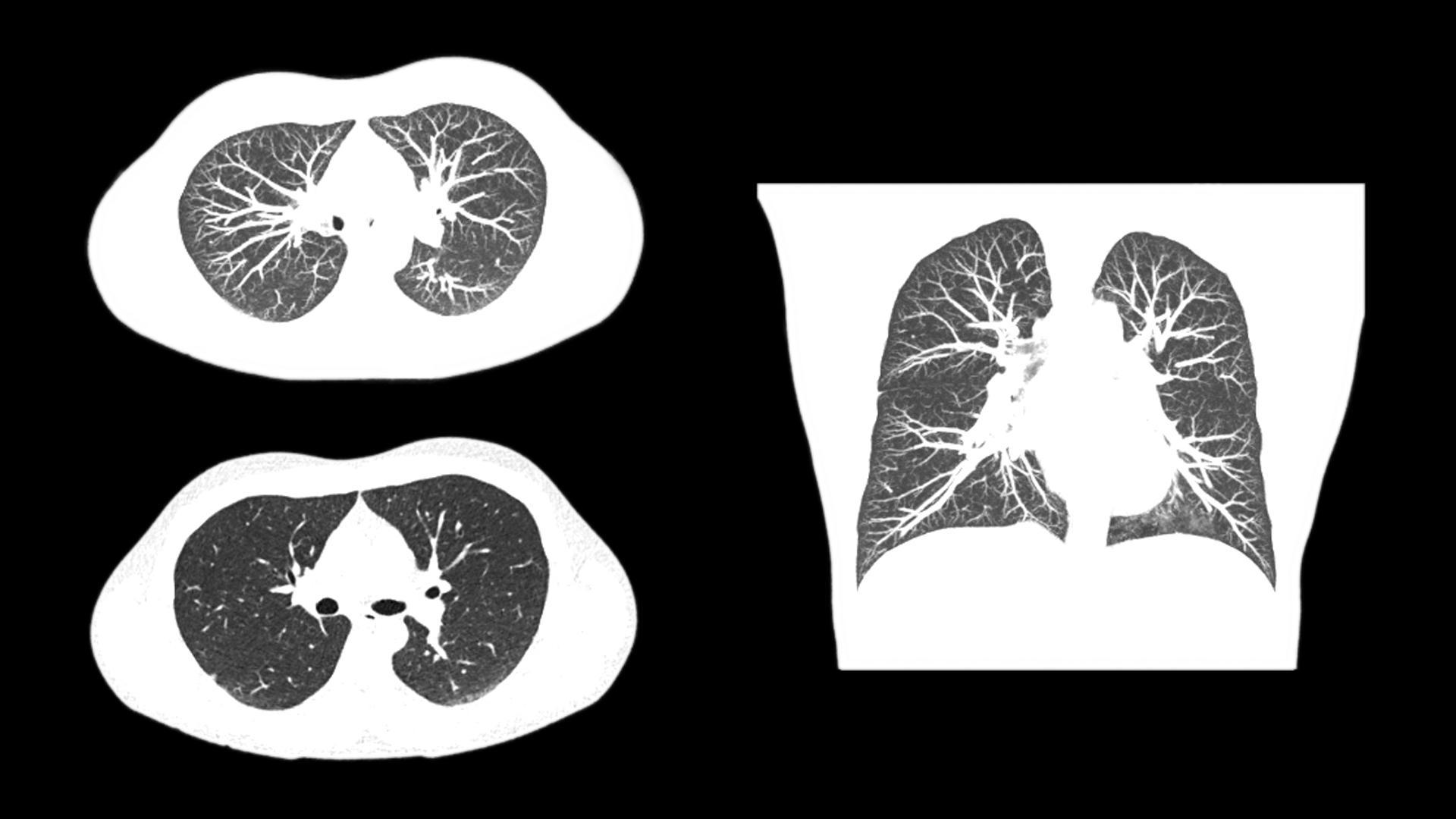 Lung Imaging Tin Filter