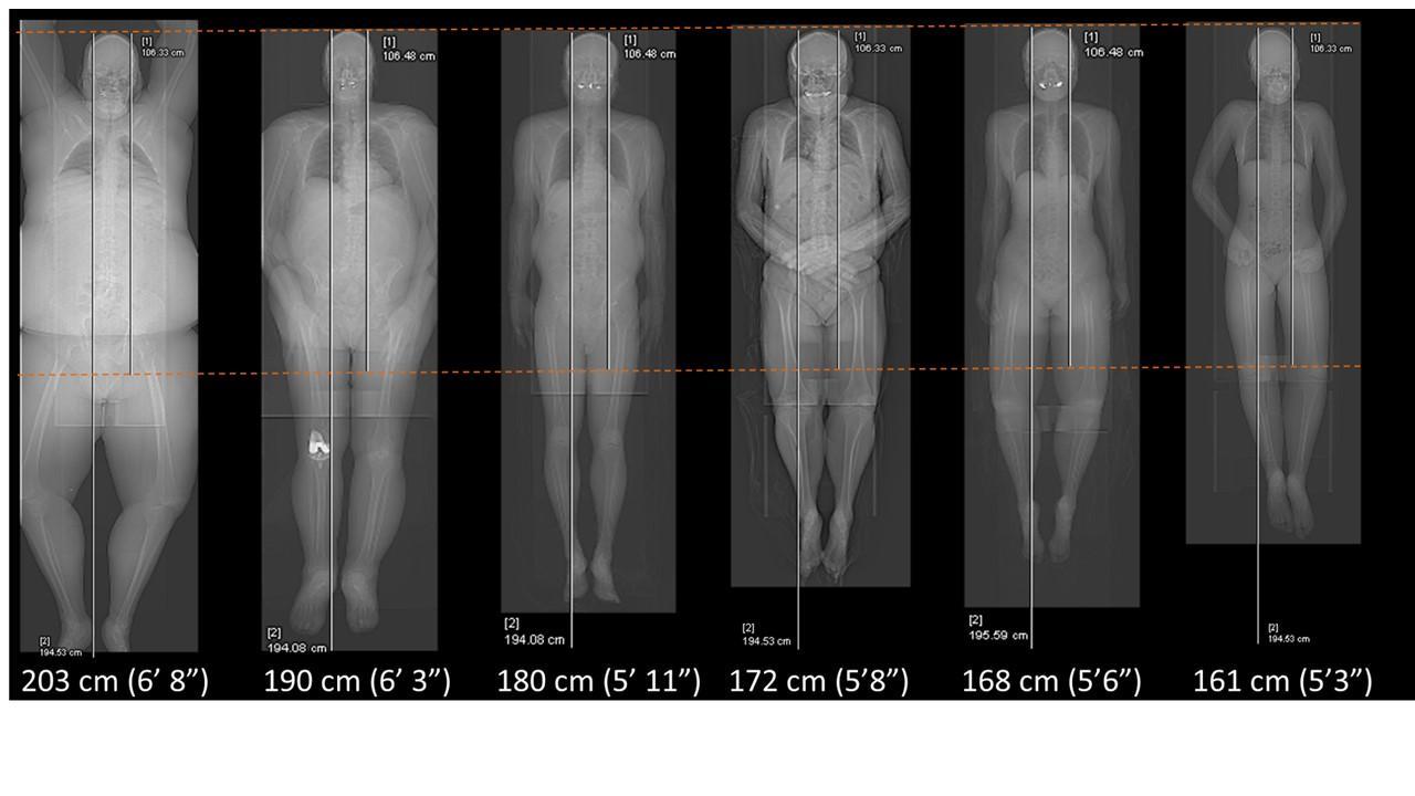 Biograph Vision Quadra scan