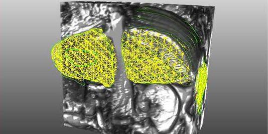 3D Ansicht ESWT Projekt